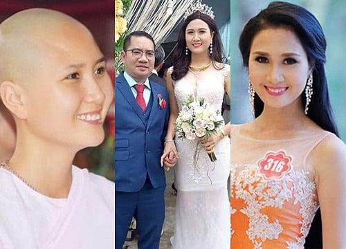 Những người đẹp tại cuộc thi Hoa hậu bị tố