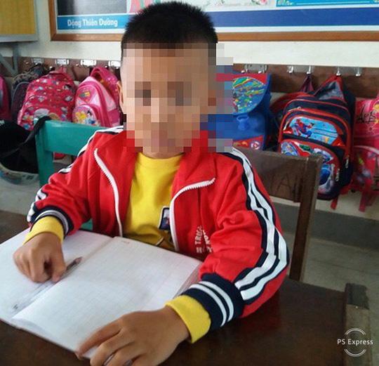 Quảng Bình: Cô giáo tát học sinh lớp 1 chấn động sọ não 1