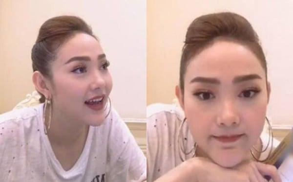 Tin tức giải trí ngày 10/1/2019: Khuôn mặt đáng sợ sau phẫu thuật thẩm mỹ của sao Việt 4