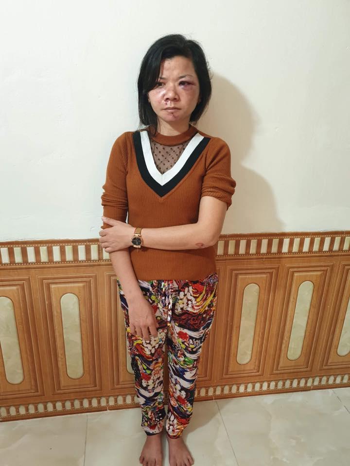 Hình ảnh Nam Định: Vợ bị chồng đánh đập dã man, thâm tím mặt mũi ngày mùng 2 Tết số 1