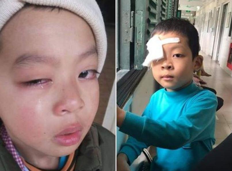 Lạng Sơn: Nghi vấn học sinh tiểu học bị chấn thương mắt nghi do cô giáo dùng thước đánh 1