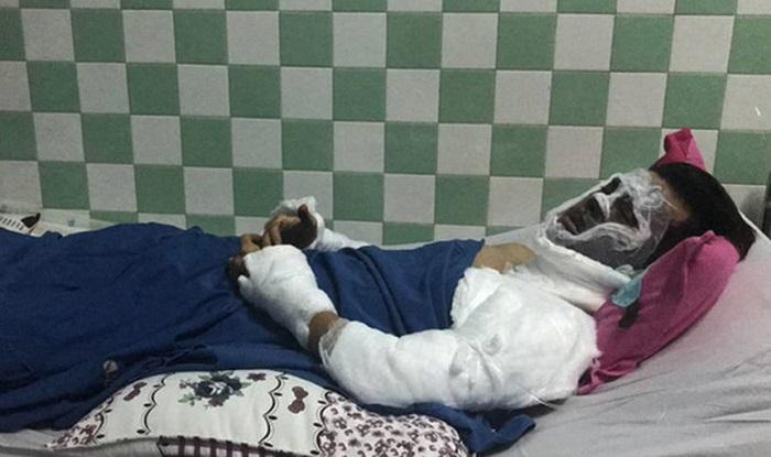 Vụ Việt kiều bị tạt axit: Mặt bị bỏng 90\%, mắt không thể mở hoàn toàn 1