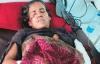 Trận chiến sinh tử người phụ nữ 56 tuổi giết chết một con báo trong 30 phút