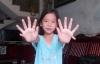Cô bé có 24 ngón tay, chân ở Quảng Nam
