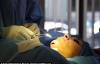 Cận cảnh ca phẫu thuật thẩm mỹ độn cằm