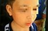 Thầy giáo dùng gậy tre đánh học sinh bầm mắt