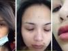 Hoa hậu Diễm Hương tung bằng chứng bị chồng cũ đánh đập
