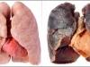 Xem thuốc lá phá hoại lá phổi như thế nào