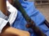 Bàn chân biến dạng thành 'gốc cây khô' sau khi bị rắn độc cắn