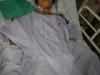 Phát hiện 40 con giun trong ống mật chủ của bệnh nhân nữ