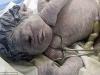 Bé sơ sinh chỉ có một mắt, không có mũi do mẹ tiếp xúc với phóng xạ