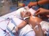 Kết quả giám định thương tật bé 11 ngày tuổi bị đâm xuyên não