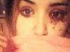 Mắc bệnh lạ cô gái chảy máu mắt năm lần một ngày