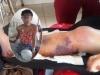 Bộ Y tế yêu cầu xác minh vụ nữ sinh bị cưa chân phải nộp 23 triệu