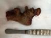 Phẫu thuật lấy sỏi thận khủng dài 11cm trong bụng bệnh nhân