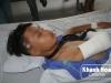 Thiếu niên 15 tuổi bị côn đồ truy sát, chém gần đứt lìa cánh tay