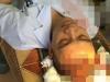 Vụ người nhà bệnh nhi đánh bác sĩ chấn thương sọ não: 'Đây là bác sỹ hết lòng vì bệnh nhân'