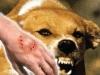 Chó dại cắn 2 người tử vong ở Đắk Lắk