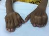 """Quà giáng sinh đến sớm với cậu bé không thể đến trường vì """"đôi bàn tay ếch"""" kỳ dị"""