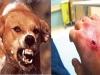 13 người đi viện vì bị chó hoang tấn công bất ngờ