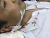 Một thiếu tá CSGT bị người vi phạm đâm trọng thương trước trụ sở công an quận