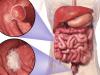 7 nhóm người có nguy cơ mắc ung thư đại trực tràng cao: Làm đủ 5 việc để tránh tử vong sớm