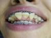 Cư dân mạng Thái Lan phát hoảng với hình ảnh hàm răng bị niềng sai cách dẫn tới biến dạng trầm trọng