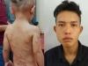 Đã có kết luận vụ cha dượng đánh dã man bé 3 tuổi ở Phú Quốc