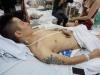 Nhóm đối tượng chém nát chân nam thanh niên ở Phú Thọ: Dằn mặt vì tranh giành đào hát