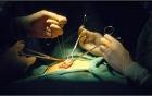 Cận cảnh công nghệ phẫu thuật chuyển đổi giới tính