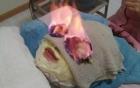 Kinh hoàng các kiểu làm đẹp: đốt mặt, tiêm máu lên da, đắp phân chim...