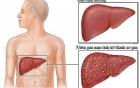Những dấu hiệu sớm của bệnh xơ gan