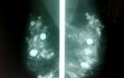 Cắt bỏ ngực vì di chứng bơm silicon từ 30 năm trước