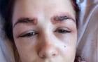 Cô gái suýt bị hỏng mắt vì nhuộm lông mày