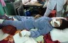 Chồng cắt gân chân, gân tay của vợ đối diện bản án nào? 2