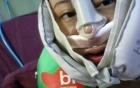 Đòi bồi thường 1 nghìn nhân dân tệ sau ca phẫu thuật khiến mũi bị lệch