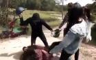 Nữ sinh lớp 12 bị nhóm bạn gái đánh hội đồng phải nhập viện cấp cứu