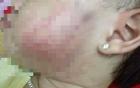 Chủ cơ sở mầm non viết thư xin lỗi gia đình bé 17 tháng bị đánh tím mặt