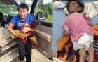 Bé 14 tháng tuổi nặng 3,5kg vì đói lâu ngày: Nhóm từ thiện