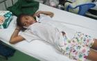Bé gái 14 tuổi suýt mất chân vì bị rắn chàm quạp cực độc cắn
