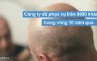 Dịch vụ đắt đỏ gần 5.000 USD xăm tóc cho người hói đầu