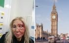 Nữ du khách bị đánh vì từ chối nói chuyện với người lạ