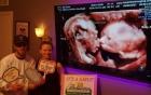 Bố mẹ bất ngờ với hình ảnh siêu âm thai sinh đôi