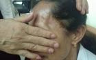 Người đàn bà 2 lần mổ não do tai biến, khỏe lại thần kỳ nhờ lọ thuốc gia truyền