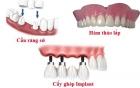 Nha Khoa Implant: Miễn Phí Cấy Ghép Xương – Tặng Răng Sứ 1 Triệu