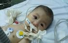 Xót xa em bé 5 tháng tuổi không thể sống quá 2 tuổi vì bệnh hiếm gặp
