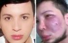 Chàng trai 28 tuổi bị biến dạng mặt vì độn má