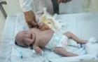 TP.HCM: Vừa chào đời, bé gái đã mang khối u khủng trên cơ thể khiến tính mạng nguy hiểm