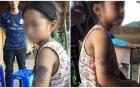 Cô giáo đánh học sinh lớp 2 bầm tím cánh tay vì chữ viết quá xấu