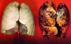 Không hút thuốc lá mà vẫn bị ung thư phổi, chuyên gia xác nhận đây chính là
